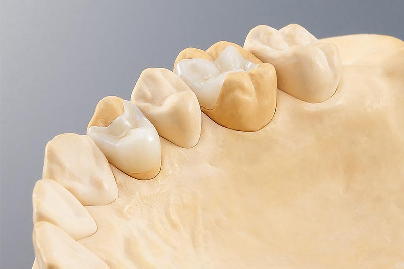 Dental Milling Solutions - inlay onlay